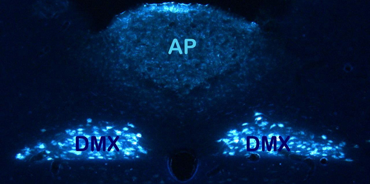 Cross-section of a rat hindbrain: It is crucial for the control of eating. AP = area postrema (chemosensory function), DMX = dorsal motor nuclei of the vagus (cell bodies of vagal efferents). Not shown: nucleus tractus solitarii (between AP and DMX) integrating afferent nerve information.